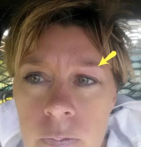 Works like botox... look at the little lines above my right eye... but my stung one is all smooth....